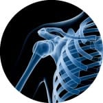 x-ray_shoulder